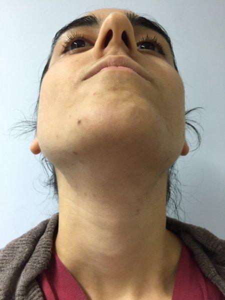 Rimozione dei peli del viso epilazione laser recensioni