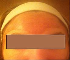 Mezzi per restauro di pigmentazione di pelle